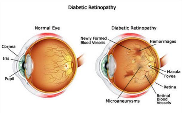 retinopatia-diabetica-natural